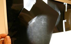 La menopausia reduce el riesgo de recaída en un tipo de cáncer de mama temprano