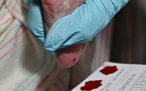 Sanidad añadirá en mayo tres nuevas enfermedades a la prueba del talón
