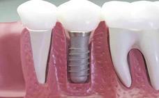 Condenan a un odontólogo a pagar 95.000 euros por un tratamiento de implantes que acabó con la pérdida de todos los dientes