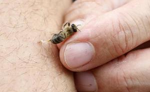 Diez pautas para evitar y curar picaduras de abejas