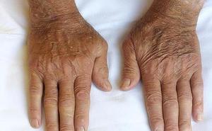 Los leoneses podrán experimentar las dificultades que viven las personas con artritis en gestos cotidianos como tomar un café