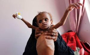 Denuncian que unos 85.000 niños podrían haber muerto de hambre en Yemen desde 2015