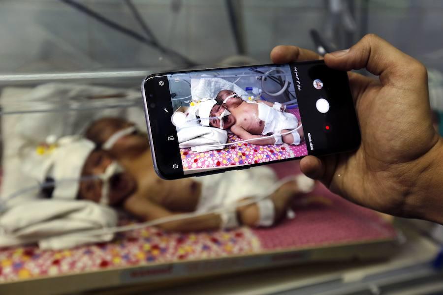 Nacen dos siameses en Yemen