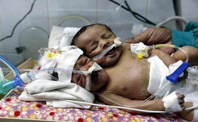 Médicos piden ayuda para trasladar a dos siameses recién nacidos en Yemen