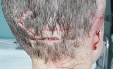 Una niña de cinco años pierde una oreja tras el ataque de un perro en Luarca