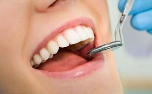 Los dentistas de León aconsejan más revisiones porque sólo el 25% de los casos de cáncer oral se detectan en fases iniciales
