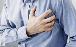 El infarto se produce dos años más tarde en la Comunidad que en el resto de España, pero con mayor mortalidad
