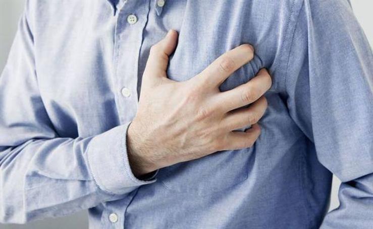 Hospitalizados y fallecidos por infarto agudo de miocardio