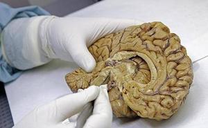 León acoge su primera mesa debate sobre la donación de cerebro