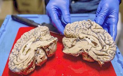 León dona su cerebro