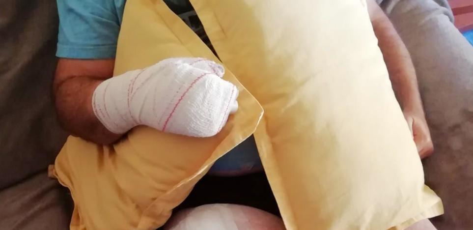 Sufre quemaduras en el muslo y la mano al explotarle el teléfono móvil en el bolsillo en Valladolid