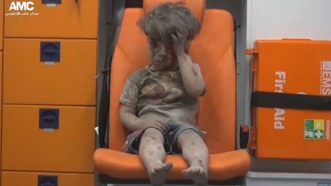 El horror de la guerra de Siria, en el rostro de un niño