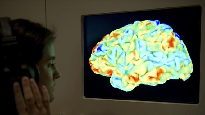 Identifican cómo el cerebro procesa y predice el habla